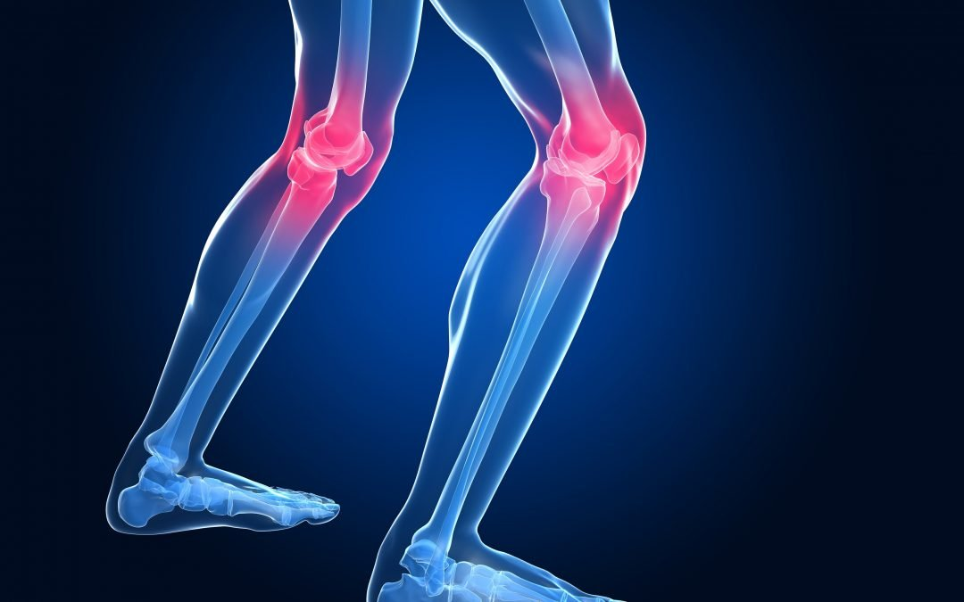 Improve Osteoarthritis in Knees